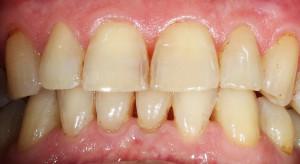 Počínající destrukce zubů v předním úseku chrupu