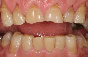 Střední destrukce zubů v předním úseku zubů v horní a dolní čelisti