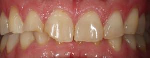 Těžká destrukce zubů v předním úseku chrupu