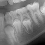 Vývoj zubů – prořezávání a výměna zubů u dětí